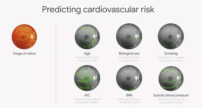 AI predicting health condition through retinal scans
